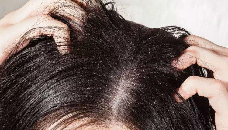 Saçtaki kepek neden olur, nasıl geçer, temizlenir? Bitkisel tedavisi