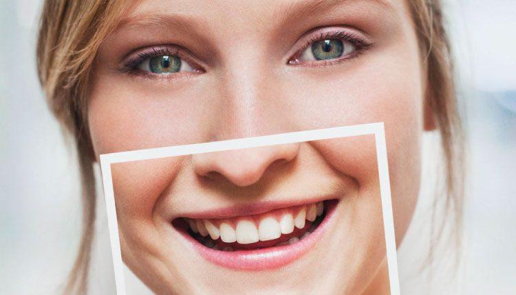 Diş taşı evde nasıl temizlenir ve nelere dikkat edilmelidir?