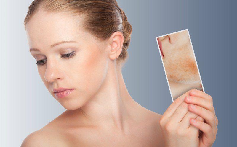 Lazer epilasyon yan etkileri, zararları neler, hamileyken yapılır mı?