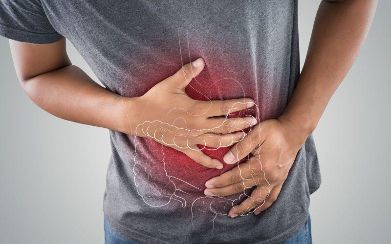 Divertikül kansere dönüşür mü? Divertikül bitkisel tedavisi Saraçoğlu