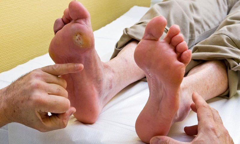 Diyabetik ayak enfeksiyonu nedir, belirtileri neler? Nasıl tedavi edilir?