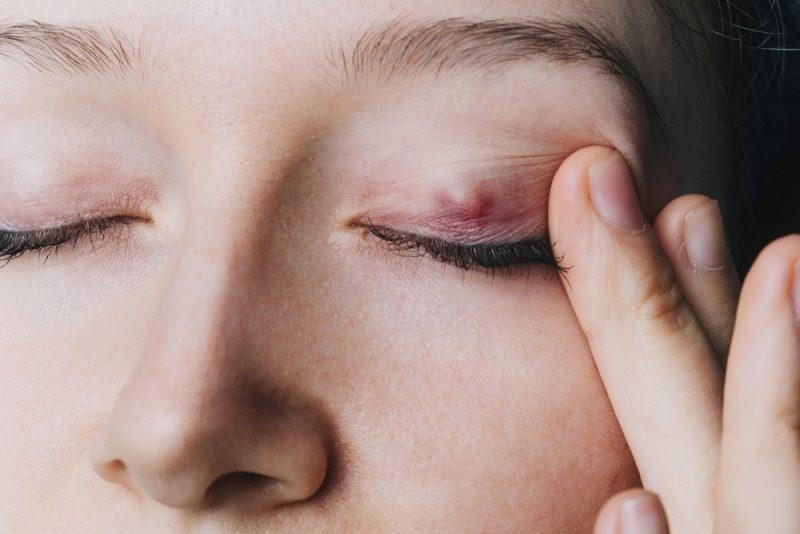 Göz kapağı kisti (Şalazyon) nedir? Belirtileri, tedavisi, ameliyatı