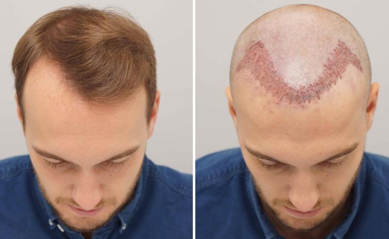 Saç ekimi tedavisi öncesi ve sonrasında zaman çizelgesi