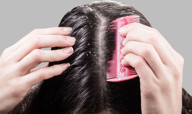 Saçta kepeklenme neden olur? Kepekli saçlar için Saraçoğlu kürü