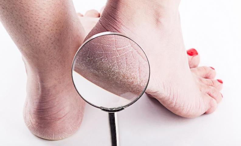 Topuk çatlaklarına ne iyi gelir doğal? Nasıl giderilir?