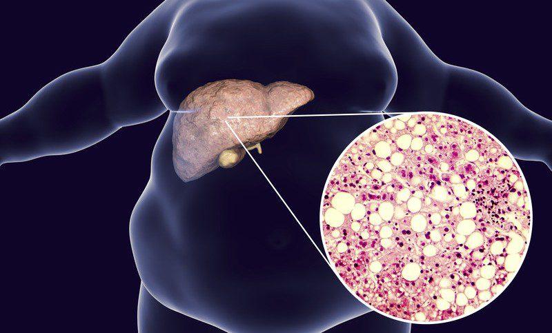 Yağlı karaciğer ileride siroza yol açabiliyor!