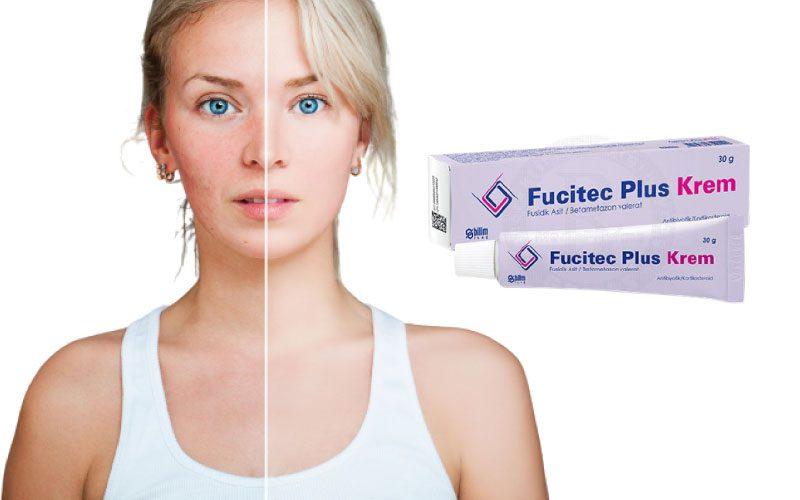 Fucitec krem yüze sürülür mü, yanık için kullanılır mı?