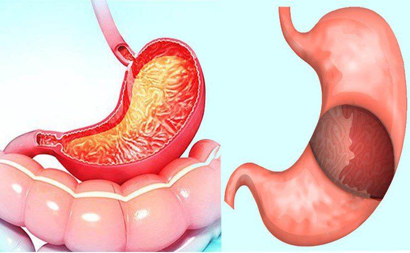 Gastrit mide duvarını kalınlaştırır mı? Saraçoğlu tedavisi