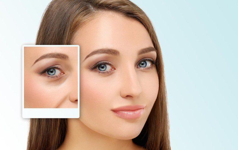 Göz kapağı estetiği ameliyatı nasıl yapılır?