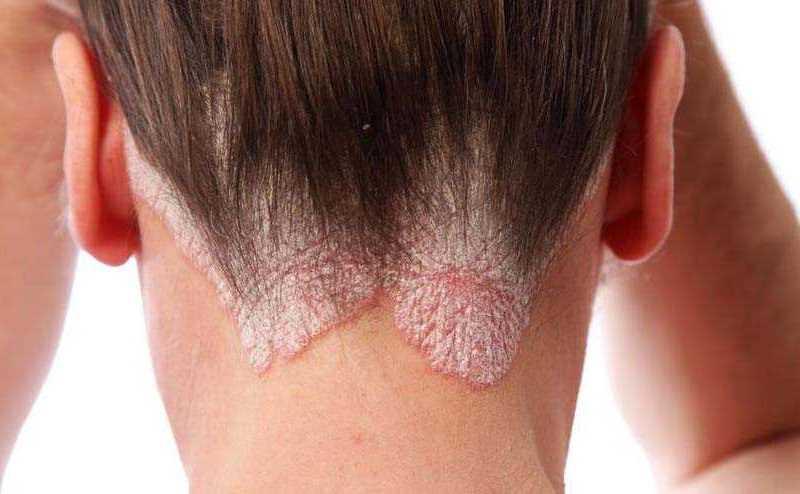 Saçkıran kendi kendine geçer mi? Evde saçkıran tedavisi