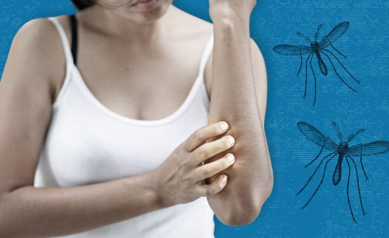 Sivrisinek ısırığına ne iyi gelir evde çözüm?