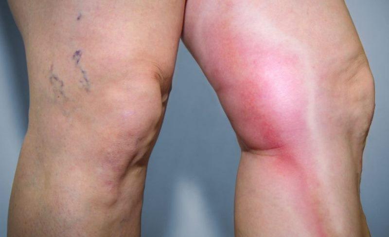 Bacak ağrısı neden olur, neyin belirtisi?