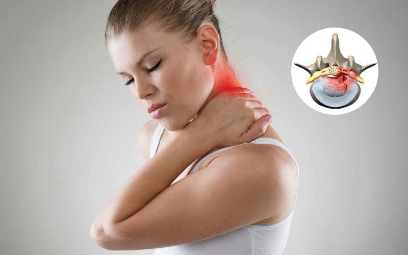 Boyun fıtığı belirtisi nasıl anlaşılır? Egzersizleri neler?