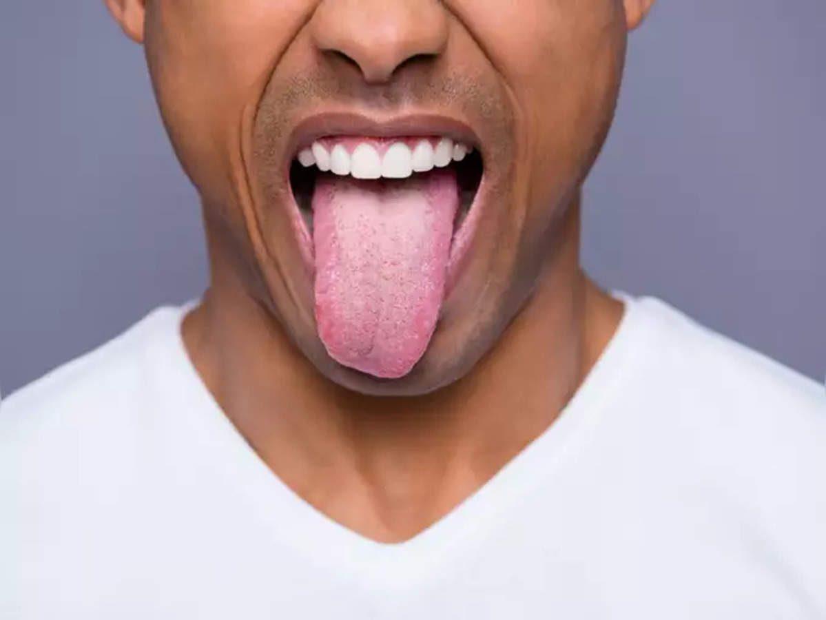 Dilde kabarcık neden çıkar, dilde çıkan kabarcıklar nasıl geçer?