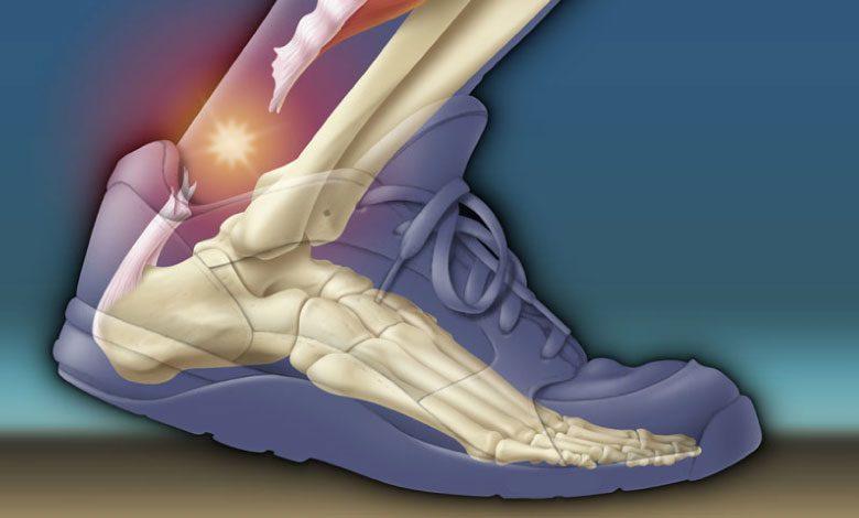 Aşil tendonu kopması belirtileri neler? Saraçoğlu tedavisi