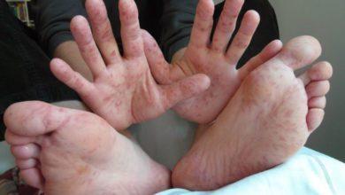 El ayak hastalığı neden olur? Belirtileri ve tedavisi